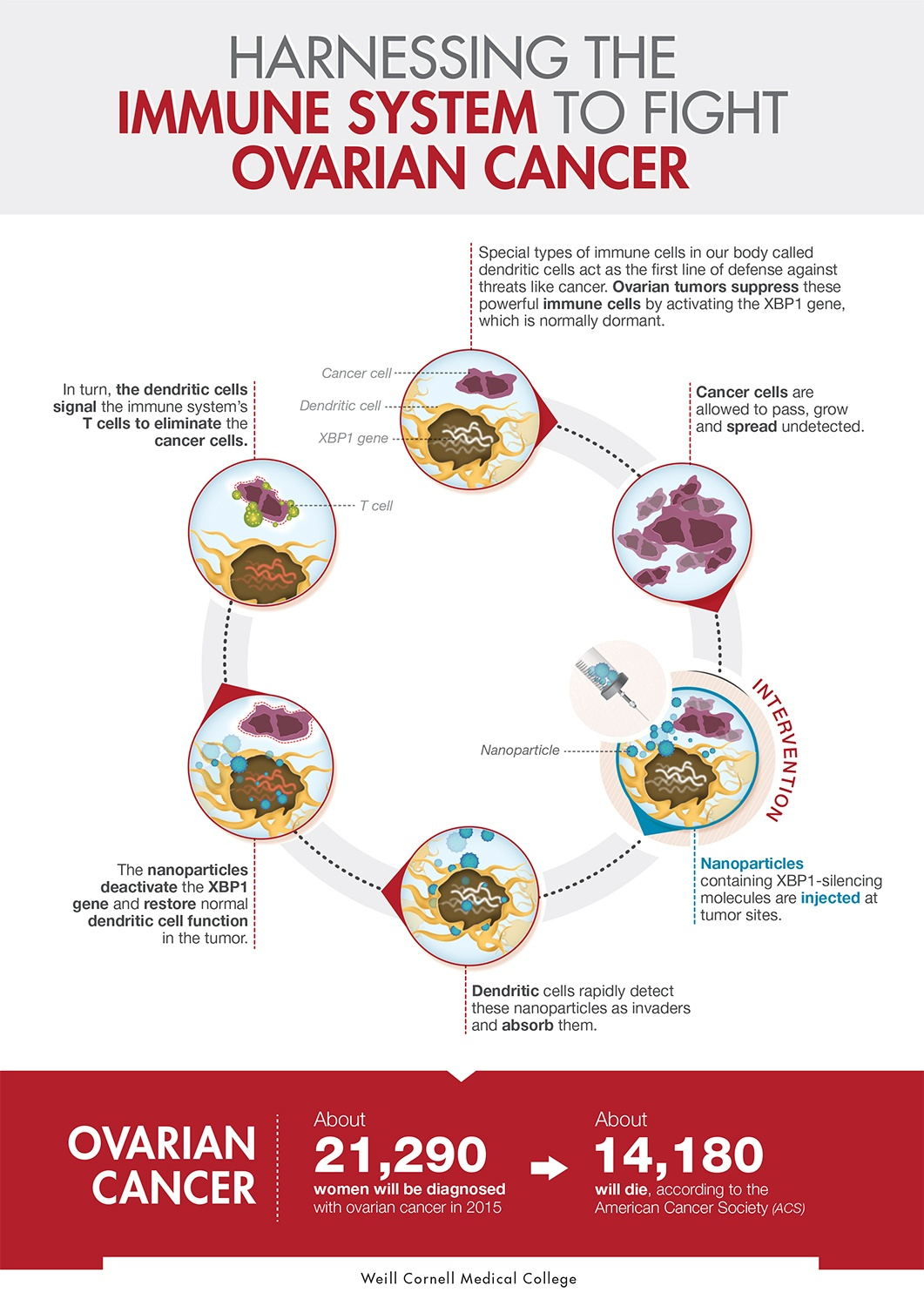 Infographic of ovarian cancer immune response
