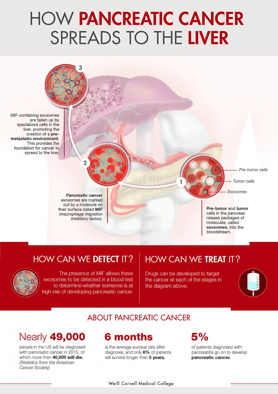 Infographic of pancreatic cancer spread