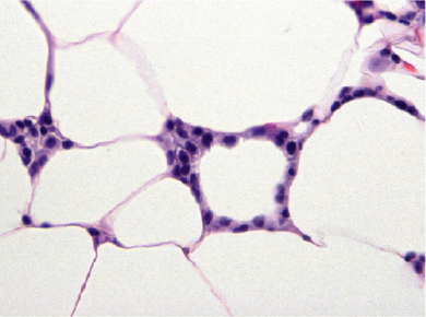 Crown-like structures in breast adipose tissue
