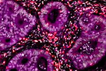 Multiplex immunofluorescence image of immune cell-infiltrated human colorectal cancer. Tumor cells are labeled with PKCi (magenta), immune cells are labeled with CD8 (red) and nuclei in white. Image courtesy of Dr. Jorge Moscat.